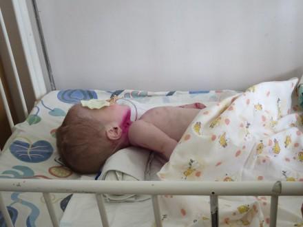 Статус паліативної дитини в Україні повинні визначити фахові педіатри - експерт