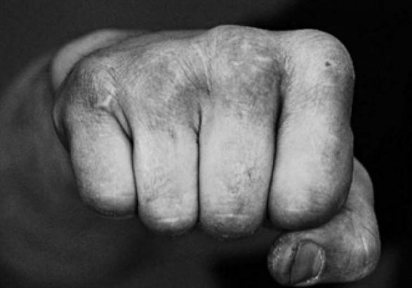 Человек с психическим заболеванием напал на полицейского в Донецкой области