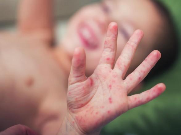 УКиєві зареєстровано 54 випадки захворювання на кір