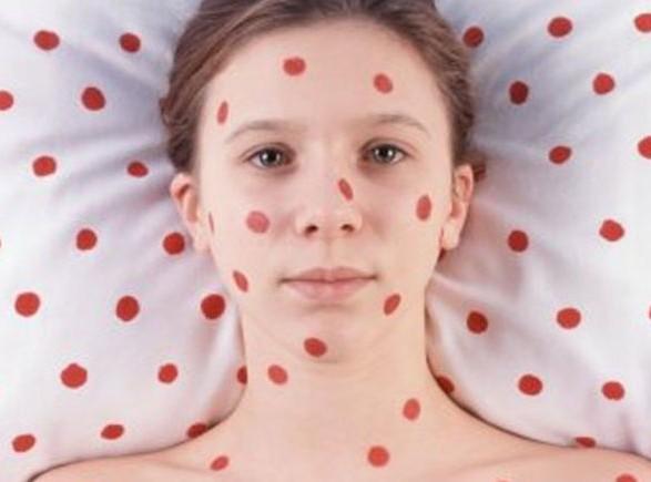 МОЗ: в Україні зареєстровано більше 1,2 тис. випадків захворювання на кір
