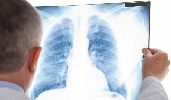 В Україні щодня помирають 10 хворих на туберкульоз