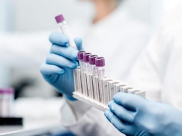 ОНОВЛЕНІ ДАНІ: близько 30 канівців захворіло на COVID-19 за останню добу