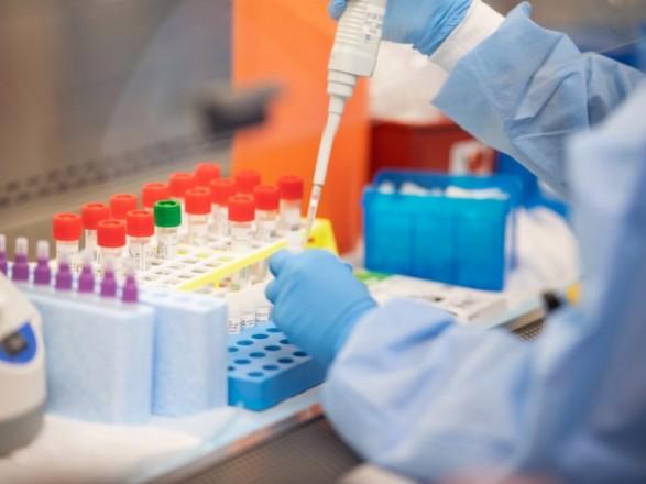 Минздрав планирует максимально привлечь частные лаборатории к тестированию на COVID-19