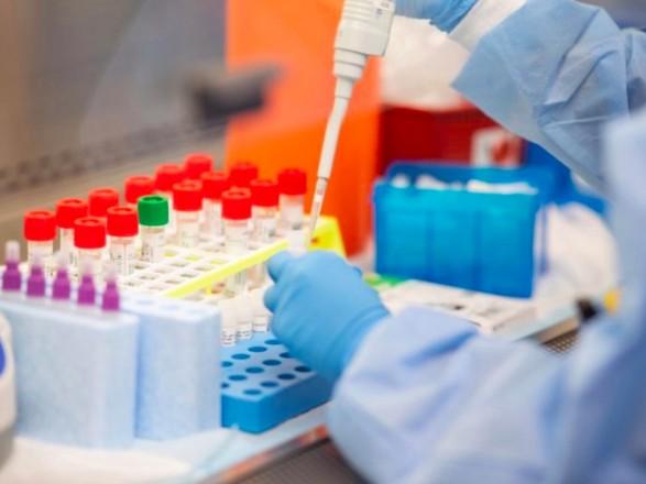 Минздрав полностью обновил алгоритм тестирования на наличие коронавируса