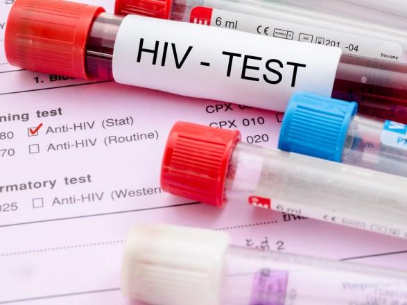 В Украине около 180 человек умерли от СПИДа в декабре