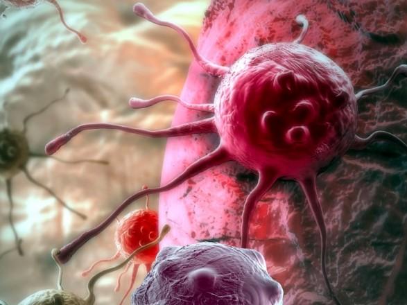 В Украине более одного миллиона человек имеют онкологические заболевания - Степанов