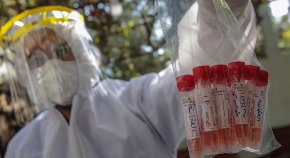 На коронавирусную инфекцию в мире заболело уже более 125, 4 млн человек