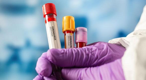 Коронавирусной инфекцией в мире заболело уже 127,5 млн человек