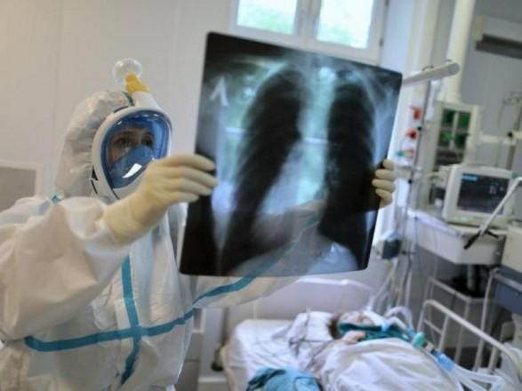 Ковидная пневмония: инфекционист рассказал, что помогает при тяжелых формах и для профилактики