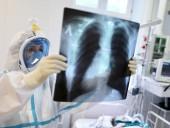 На Буковині кількість хворих на коронавірус за добу йде на спад