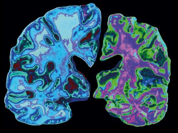 В США одобрили новое лекарство от болезни Альцгеймера