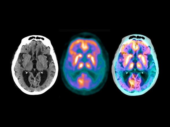 Исследование: COVID-19 может привести к деменции, подобной болезни Альцгеймера