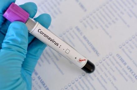 На Херсонщине зафиксировали 851 новый случай коронавируса за сутки